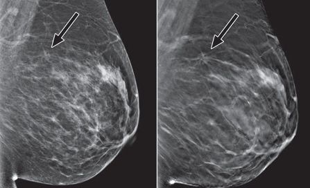 Breast Cancer Digital Mammogram | www.pixshark.com ...