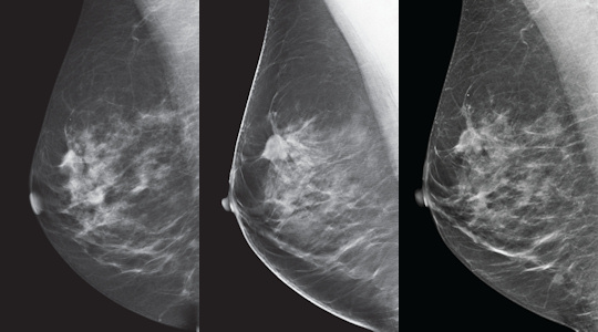 breast tomosynthesis dose South texas radiology imaging centers is excited to offer digital breast tomosynthesis (dbt), a new digital mammography technology commonly referred to as a 3d mammogram.