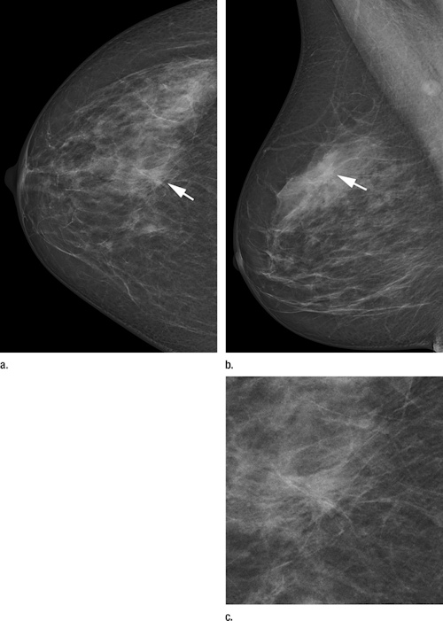 Photon-counting mammography
