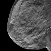 digital breast tomosynthesis in breast imaging Tomosynthesis is a revolutionary technology that gives radiologists the ability to identify and characterize individual breast structures without the appearance of.