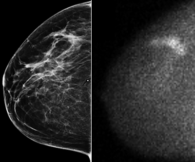 Carcinoma detected by molecular breast imaging