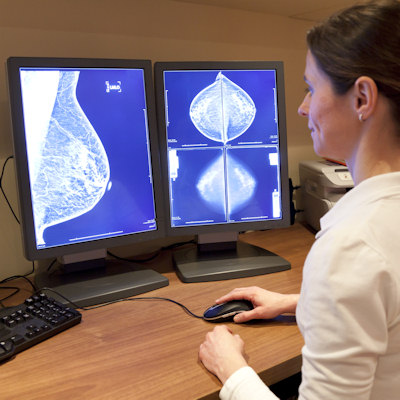 Can QA sessions help technologists read mammograms?