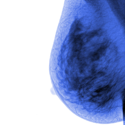 DBT slashes biopsy rates of benign breast lesions