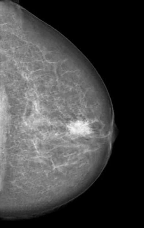 Mammogram manipulated with a neural-network-generated mass