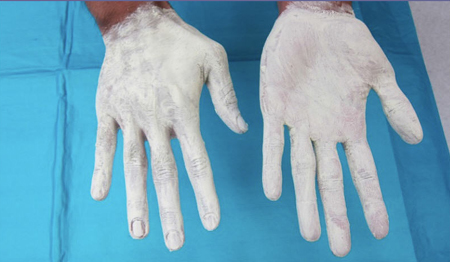 Hands with Ultra Blox cream