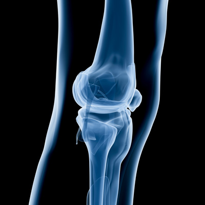 Study finds diet is crucial for protecting knees