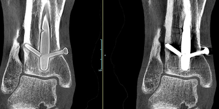 Extremity scan with OnSight 3D