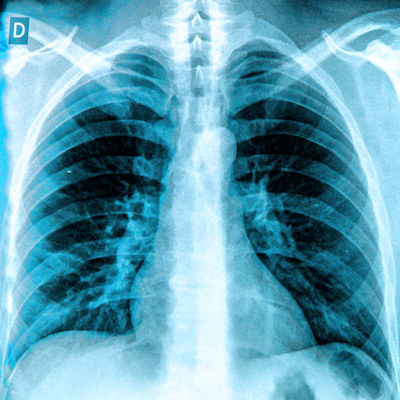 Choosing Wisely doesn't reduce pediatric chest x-rays