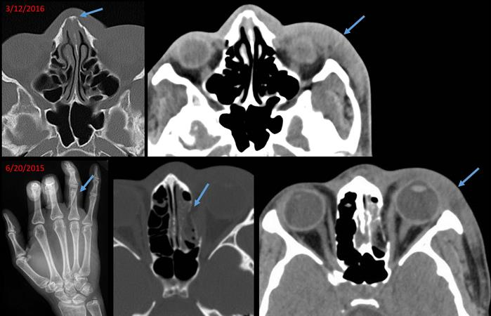 21-year-old woman with a chronic nasal bone fracture and other injuries