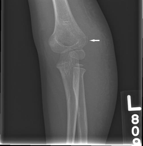 X-ray of fracture taken by technologist