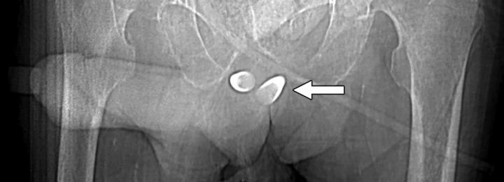 Scout image from contrast-enhanced CT scan shows erectile implant