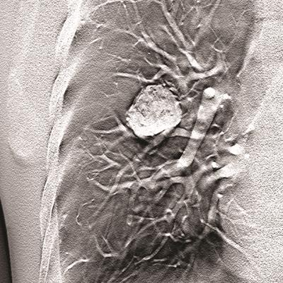 Carestream wins FDA clearance for tomosynthesis