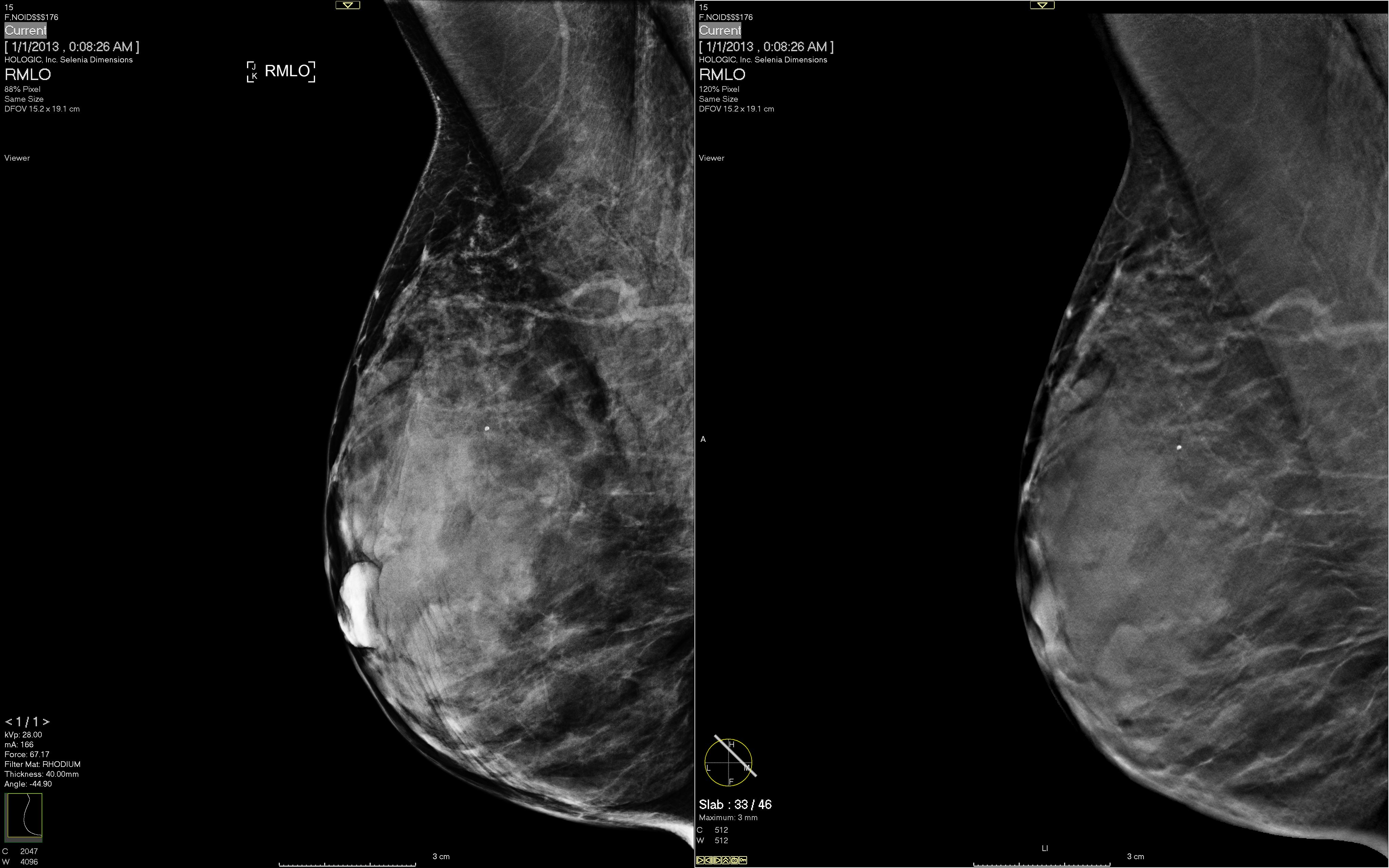 breast tomosynthesis courses 2014 Large multicenter studies demonstrate that digital breast tomosynthesis reduces call back and increases breast cancer detection the mqsa and fda require documented training in digital breast tomosynthesis prior to independent use in clinical practice.