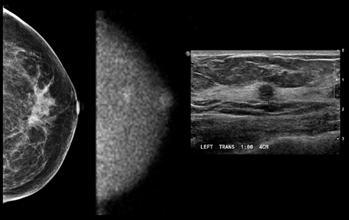 Advances in Molecular Breast Imaging Special Report, AuntMinnie.com: Images show (L to R) negative mammogram (craniocaudal view), MBI study (craniocaudal view), and ultrasound study.