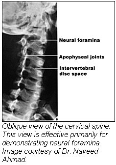 Oblique view of the cervical spine