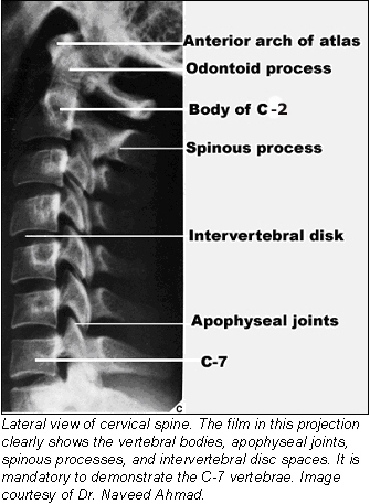 Lateral view of cervical spine