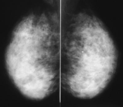 kolb ultrasound breast