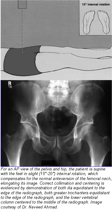 Proper positioning for the pelvis and proximal femur X Ray Femur 2 Views