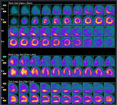 cardiology case studies