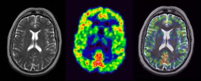 First Pet Mri Brain Images Debut At Snm 2007