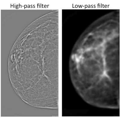 Take that, Watson: Radiologists 'sense' cancer in images