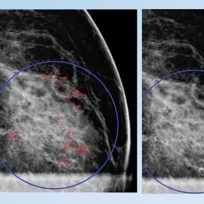 Can deep-learning CAD outperform mammographers?