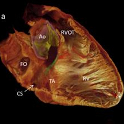 Researchers visualize cardiac conduction system in 3D