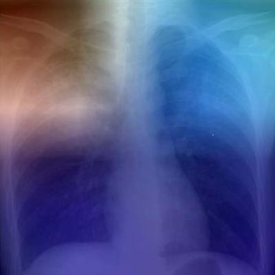 Can AI accurately diagnose tuberculosis from chest x-rays?
