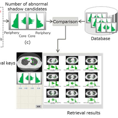 Fujitsu develops AI to analyze CT studies