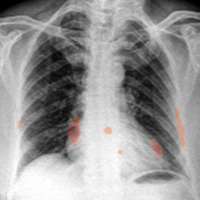 Radiology news education service an imaging artificial intelligence algorithm that can show why it made its diagnosis can go a long way toward building radiologist confidence in its sciox Choice Image