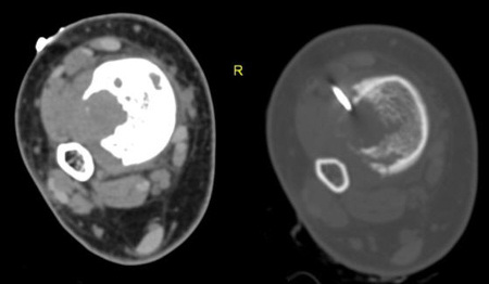 adamantinoma of the right tibia case study Investigations revealed an adamantinoma in the diaphysis of the right  r metastatic or metachronous adamantinoma: an  or metachronous adamantinoma:.