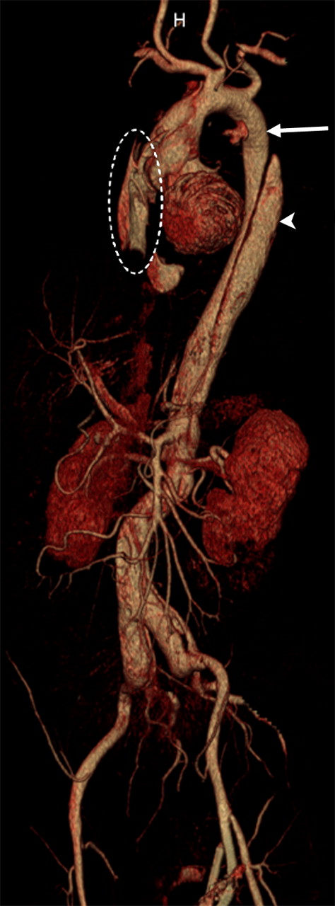 3D volume rendering of thoracoabdominal aorta