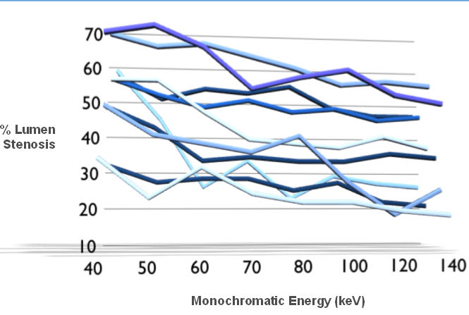 Percentage stenosis decreased with monochromatic energy