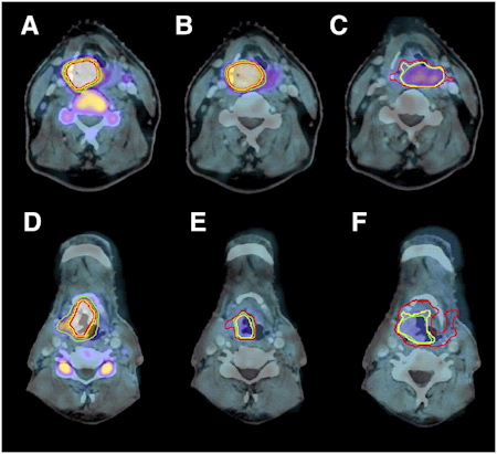 FLT-PET/CT of laryngeal carcinoma