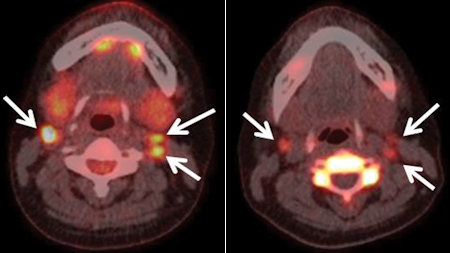 FDG-PET/CT and FLT-PET/CT