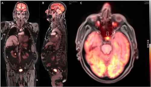 Hypermetabolic focus on PET/MRI