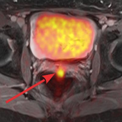 PET/MRI outclasses MRI alone for pelvic cancer recurrence