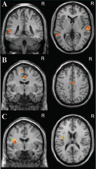... between functional connectivity and severity of early anxiety at fMRI