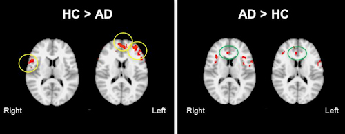 ASL-fMRI in Alzheimer