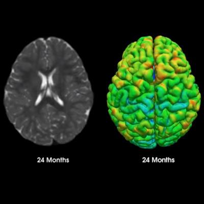 MRI initiative will chart brain development in children