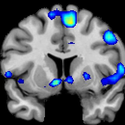 fMRI finds where God might dwell in the brain