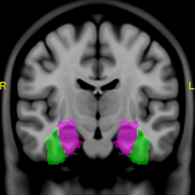 Brain atlas advances MRI exploration