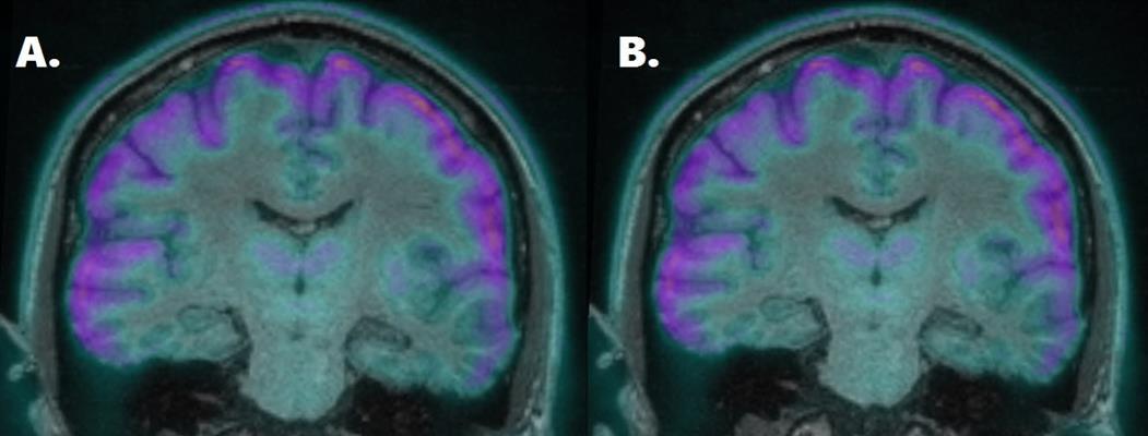 Coronal fused FDG-PET and MR image