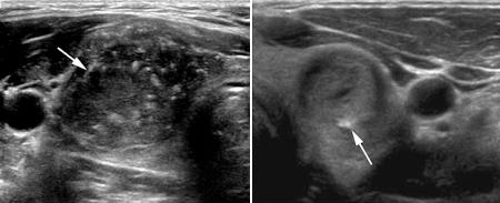 solid nodule in a breast ultrasound jpg 1500x1000