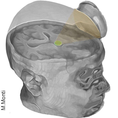 Ultrasound jump-starts patient's brain after coma
