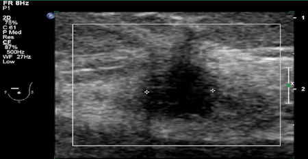 ABUS showed a small mass in the left breast.
