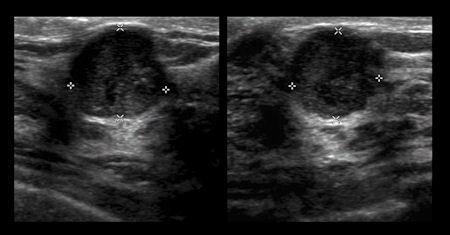 ultrasound image left breast cancer