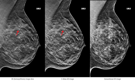 What exactly is certainly busts tomosynthesis?