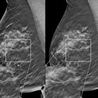 tomosynthesis radiation dose Breast radiation dose with digital breast tomosynthesis compared to digital mammography: per-view analysis gisella gennaro1 & d bernardi2 & n houssami3 received: 9 march 2017 /revised: 22.