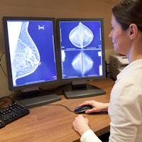 Breaking BI-RADS: Breast density measures vary widely